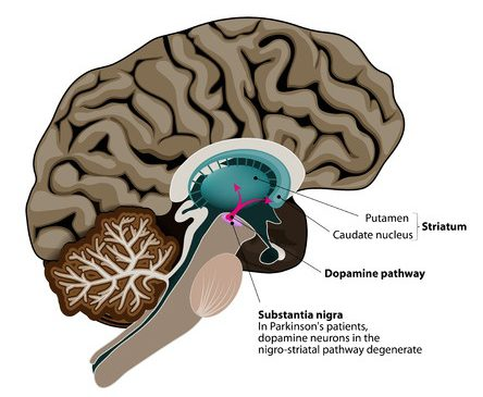33194756 - parkinson's disease. cross-section of the human brain showing the substantia nigra, the region affected by parkinson's disease. illustration shows neuronal pathways that degenerate in parkinson's disease.